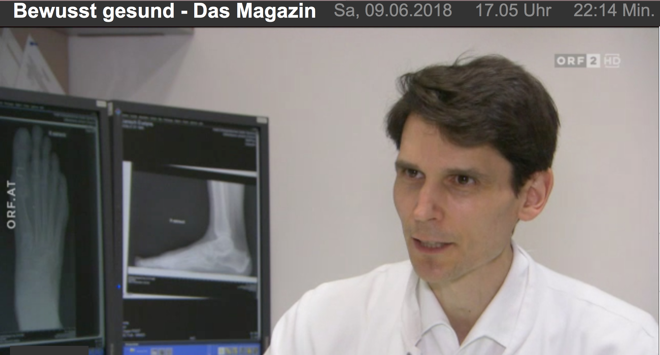 New fixation methods for hallux valgus surgery with resorbable screws - Dr. Bock