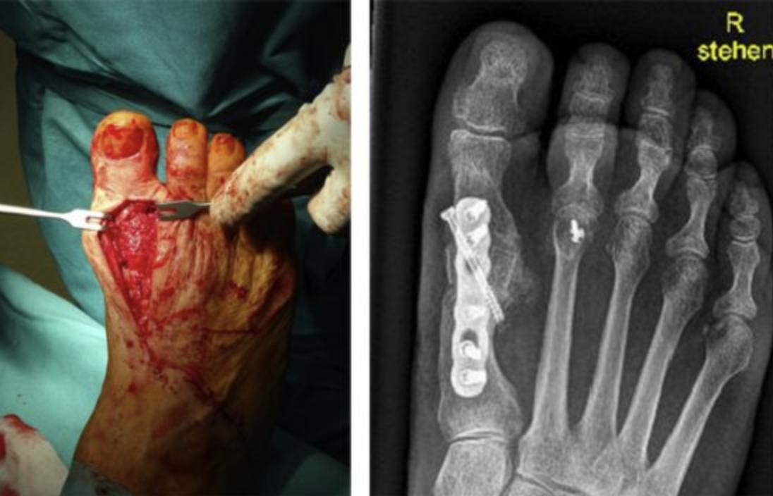 Avaskuläre Köpfchennekrose als Komplikation nach chirurgischer Hallux valgus Korrektur